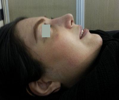 نمونه جراحی بینی دکتر محمد علی زرین قلم 10