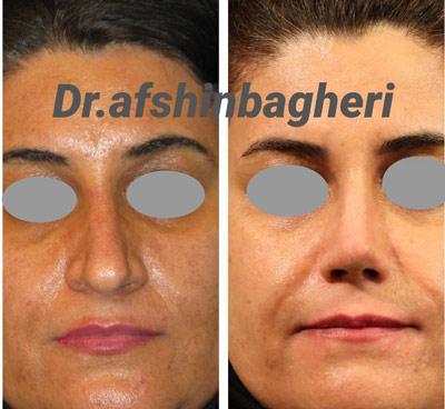 نمونه جراحی بینی دکتر باقری 1