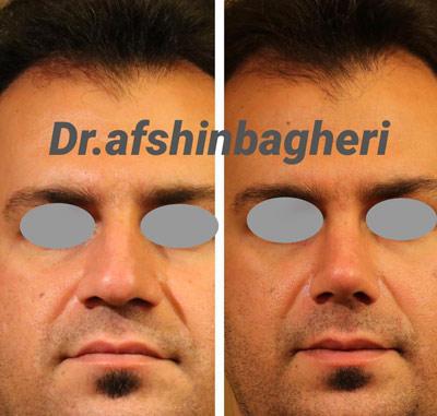 نمونه جراحی بینی دکتر باقری 2