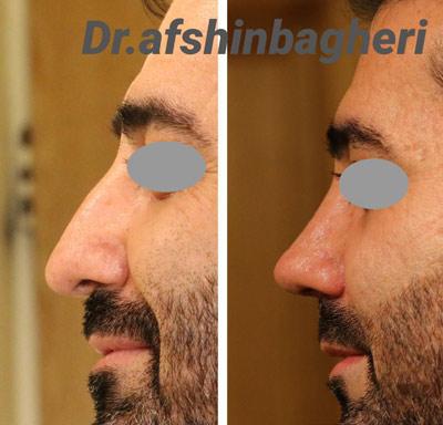 نمونه جراحی بینی دکتر باقری 7