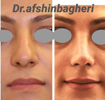 نمونه جراحی بینی دکتر باقری 8