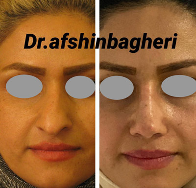 نمونه جراحی بینی دکتر باقری 10