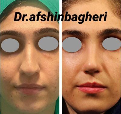 نمونه جراحی بینی دکتر باقری 12