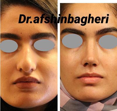 نمونه جراحی بینی دکتر باقری 13