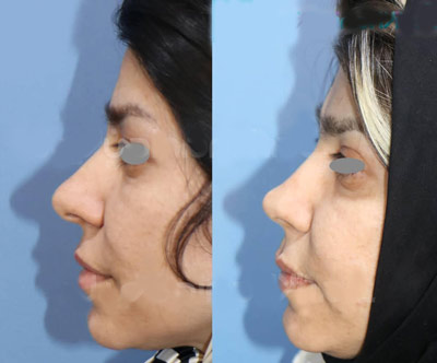 نمونه جراحی بینی دکتر ساریخانی 9