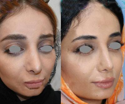 نمونه جراحی بینی دکتر ساریخانی 11