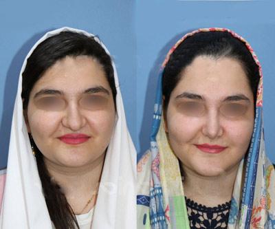 نمونه جراحی بینی دکتر ساریخانی 5