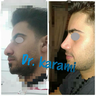 نمونه جراحی بینی دکتر کرمی 4