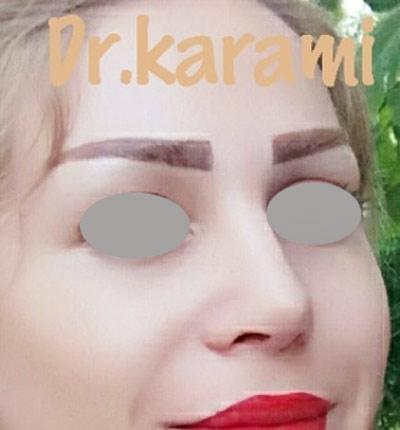 نمونه جراحی بینی دکتر کرمی 1
