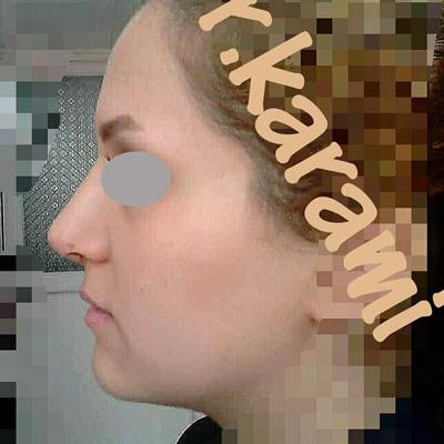 نمونه جراحی بینی دکتر کرمی 8