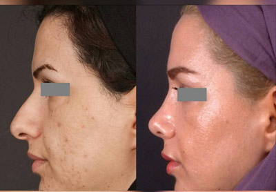 نمونه جراحی بینی دکتر تهرانی 12