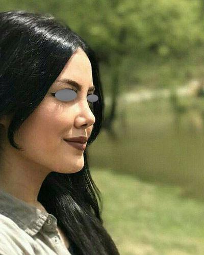 نمونه جراحی بینی دکتر تهرانی 11