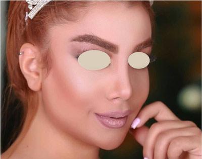 نمونه جراحی بینی دکتر تهرانی 1