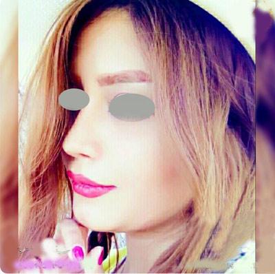 نمونه کار جراحی بینی دکتر نظری9