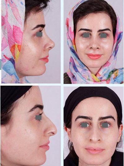 نمونه جراحی بینی دکتر فقیه 1