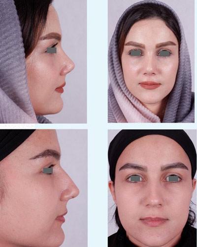 نمونه جراحی بینی دکتر فقیه 2