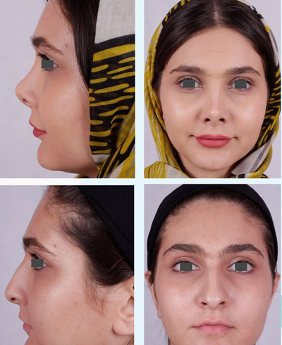 نمونه جراحی بینی دکتر فقیه 3