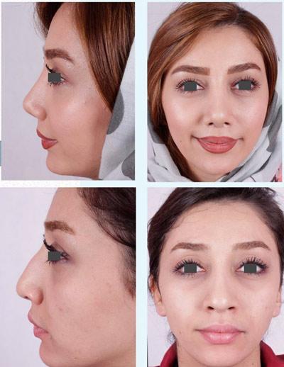 نمونه جراحی بینی دکتر فقیه 5