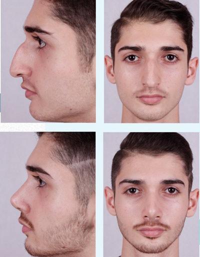 نمونه جراحی بینی دکتر فقیه 7