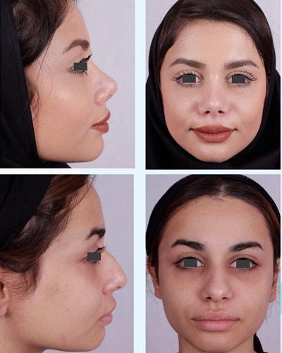 نمونه جراحی بینی دکتر فقیه 8