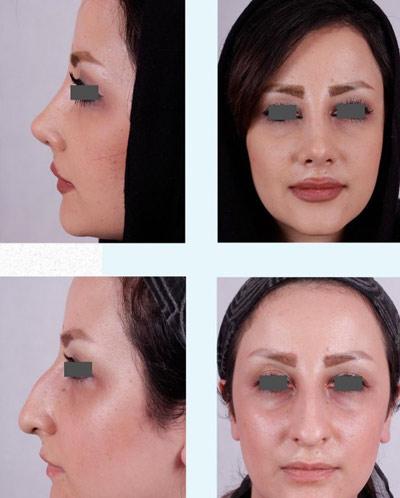 نمونه جراحی بینی دکتر فقیه 9