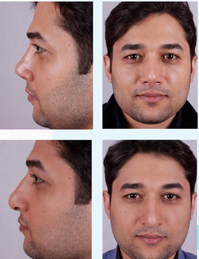 نمونه جراحی بینی دکتر فقیه 11