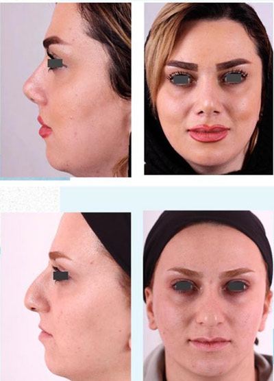 نمونه جراحی بینی دکتر فقیه 12