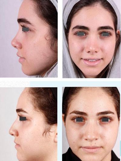 نمونه جراحی بینی دکتر فقیه 13