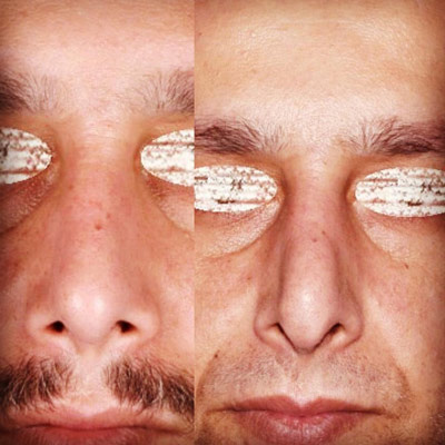 نمونه جراحی بینی دکتر ادهم 4