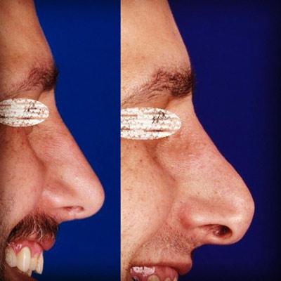 نمونه جراحی بینی دکتر ادهم 2