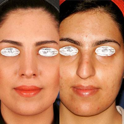 نمونه جراحی بینی دکتر ادهم 3