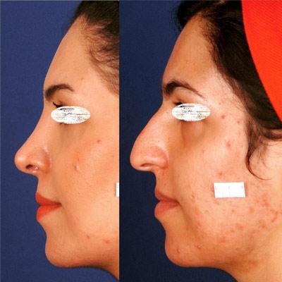 نمونه جراحی بینی دکتر ادهم 1