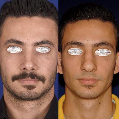 نمونه جراحی بینی دکتر ادهم 8