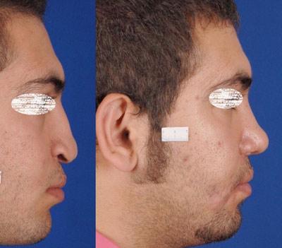 نمونه جراحی بینی دکتر ادهم 6