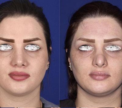 نمونه جراحی بینی دکتر ادهم 9