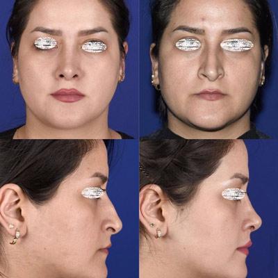 نمونه جراحی بینی دکتر ادهم 7