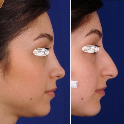 نمونه جراحی بینی دکتر ادهم 5