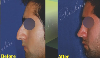 نمونه جراحی بینی دکتر ربیعی 5