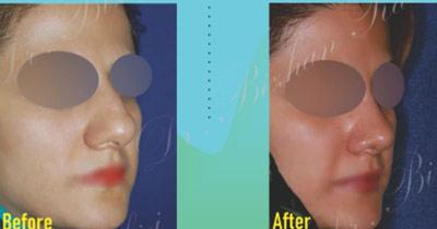 نمونه جراحی بینی دکتر ربیعی 6