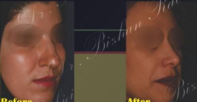 نمونه جراحی بینی دکتر ربیعی 10