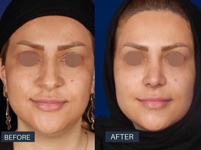 نمونه جراحی بینی دکتر روشنی 8