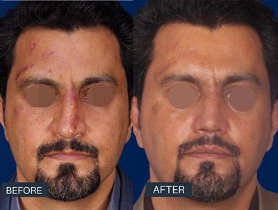 نمونه جراحی بینی دکتر روشنی 9