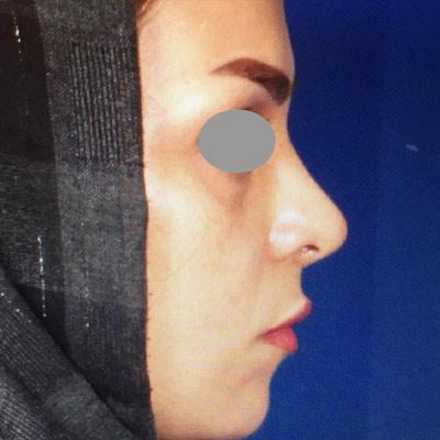 نمونه جراحی بینی دکتر روشنی 10