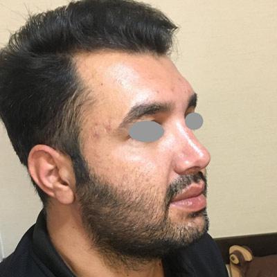 نمونه جراحی بینی دکتر روشنی 12