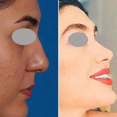نمونه جراحی بینی دکتر روشنی 1