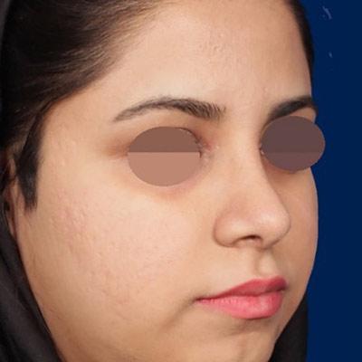 نمونه جراحی بینی دکتر روشنی 2