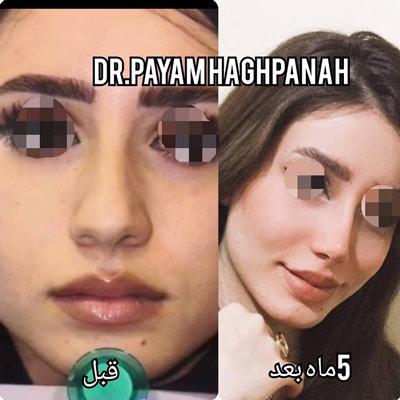 نمونه کار جراحی بینی دکتر حق پناه1