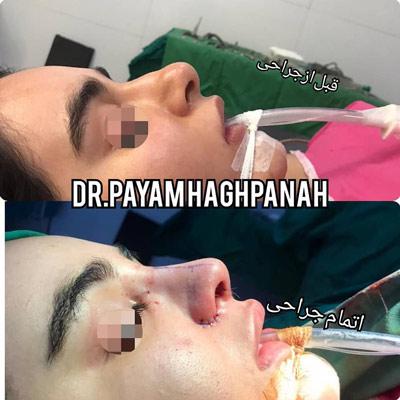 نمونه کار جراحی بینی دکتر حق پناه4
