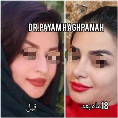 نمونه کار جراحی بینی دکتر حق پناه7