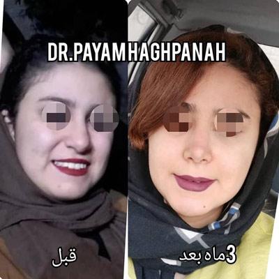 نمونه کار جراحی بینی دکتر حق پناه9
